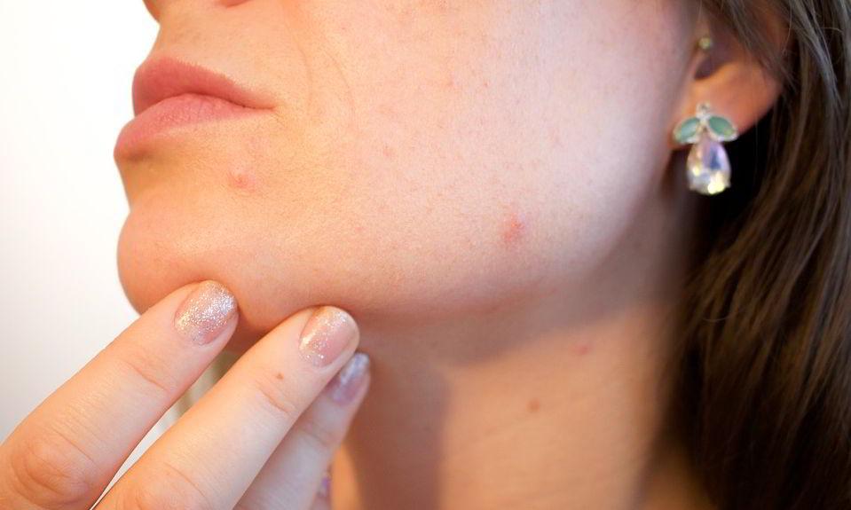hvidløg mod acne